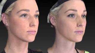 Rhinoplasty 3D Before and After-12