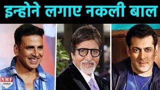 Bollywood के इन Stars ने कराया Hair Transplant Surgery,जिसके बाद ये दिखते है ये Stars