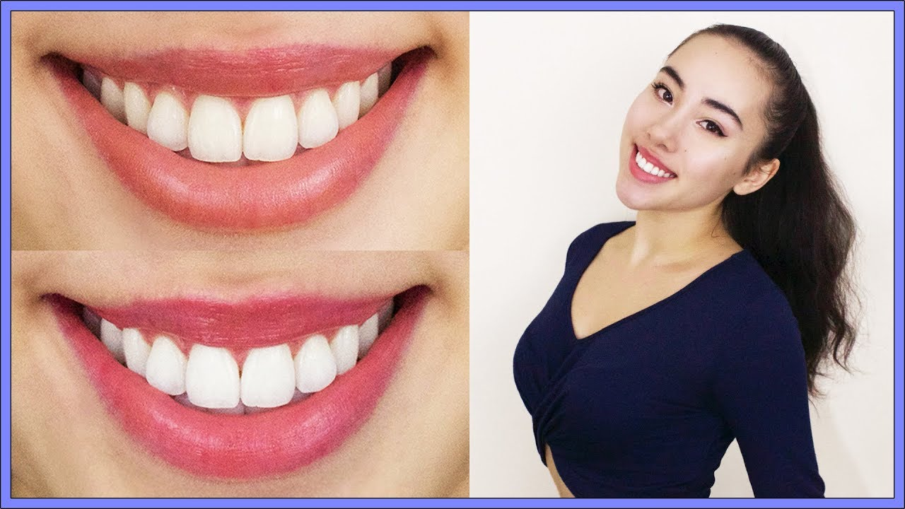 How I Whiten My Teeth At Home | Teeth Whitening Tips ...