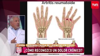 En fibromialgia dolor pies y manos de