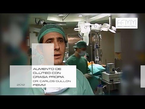 Aumento De Glúteos Con Grasa Propia (Gluteoplastia) #cirugiaestetica