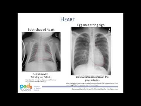 Approach to Pediatric Chest X-Rays