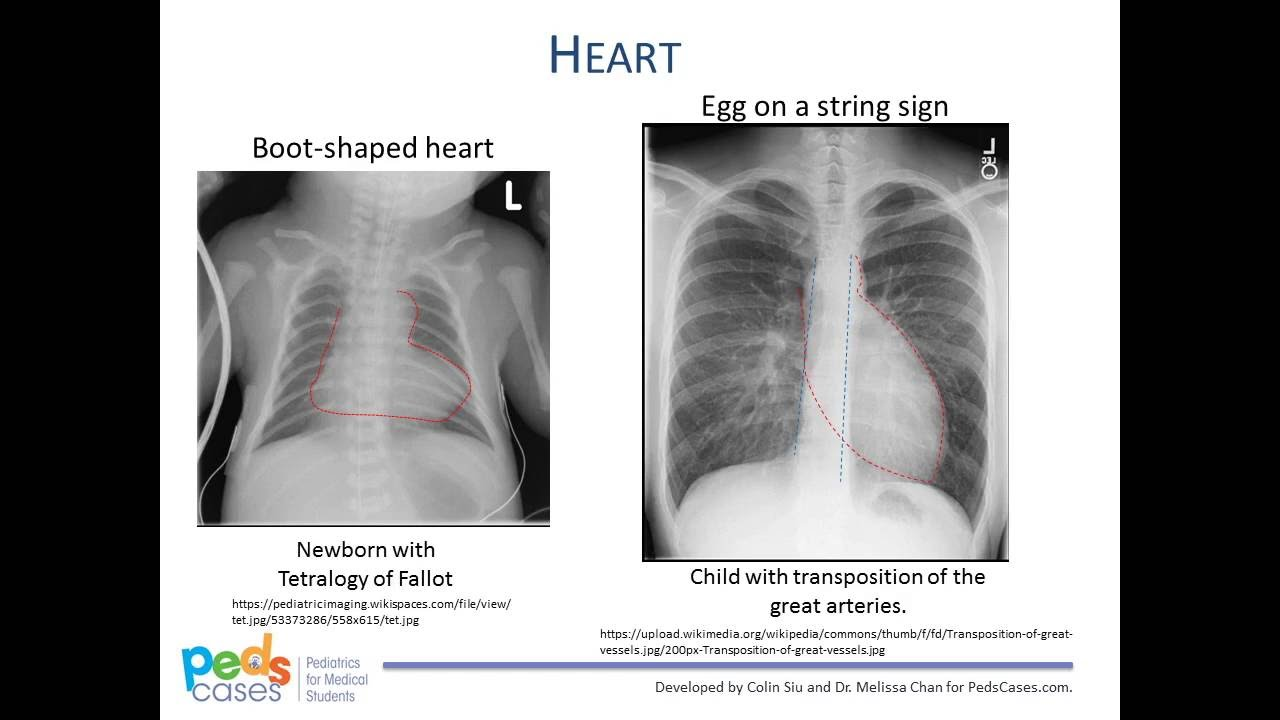 When and how often can X-rays be made for children