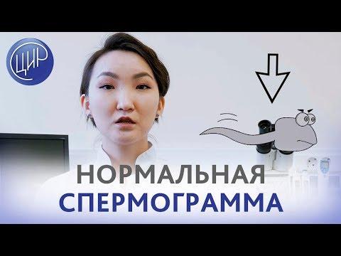 Норма спермограммы. Анализ спермограммы и нормальные показатели спермограммы.  Тоджаева Д.К.