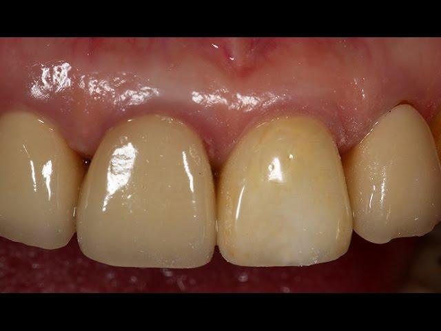 Dentium Implantium ll clinical cases