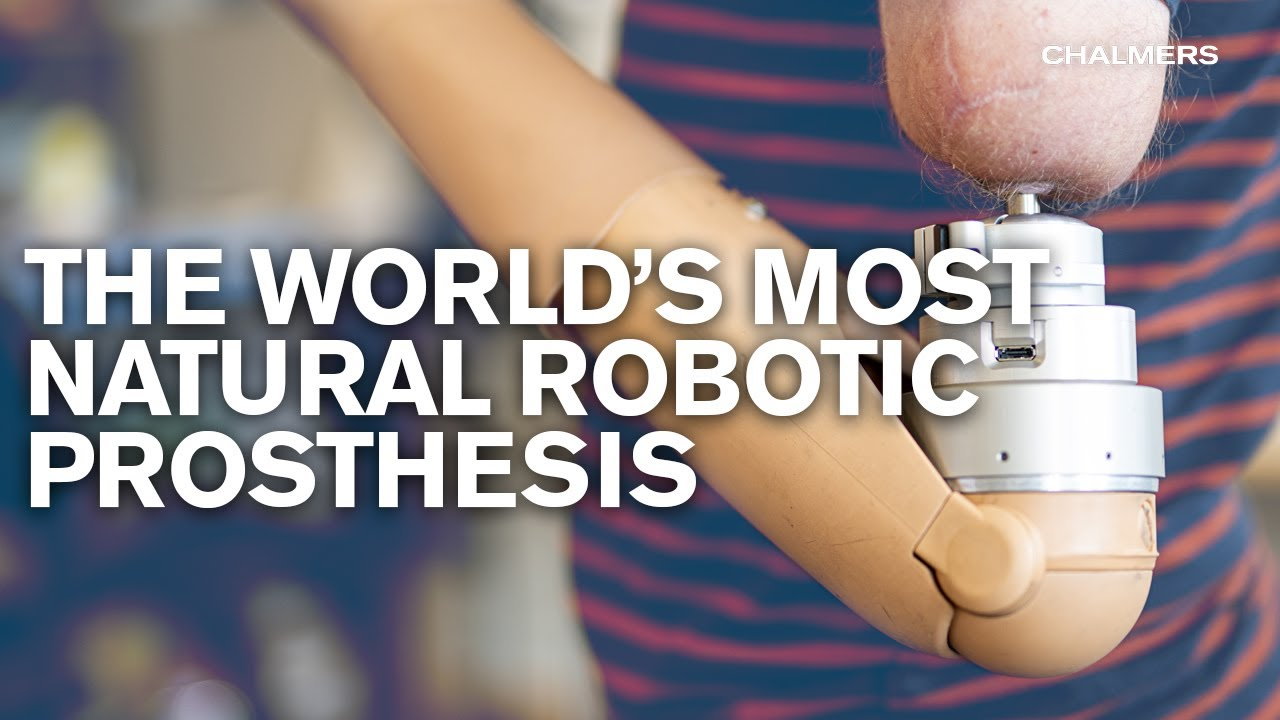 The most natural Robotic Prosthesis in the world