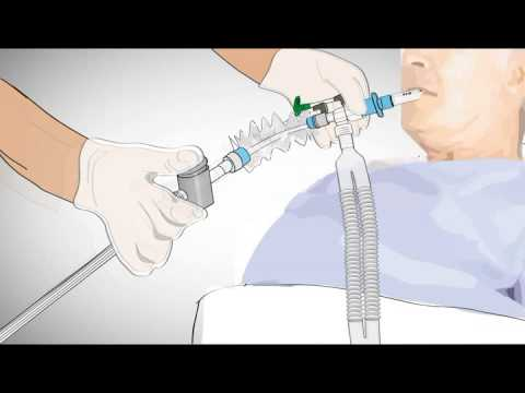 Closed Suction System Youtube