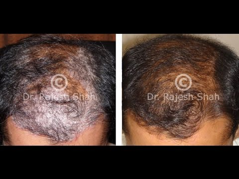 See pictures and videos of Scalp Psoriasis 1
