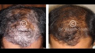 Scalp Psoriasis treated at Life Force