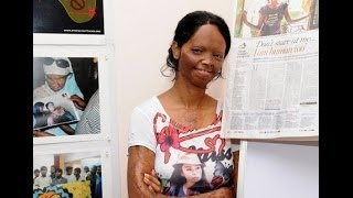 International Women of Courage Award Indian lady Laxmi acid attack victim