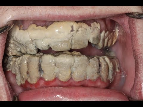 20 Years Without Brushing Teeth 😦   Calculus Removal