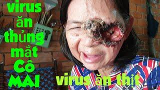 Người Phụ Nữ 63 Tuổi, Bị Virus Ăn Thủng Mắt