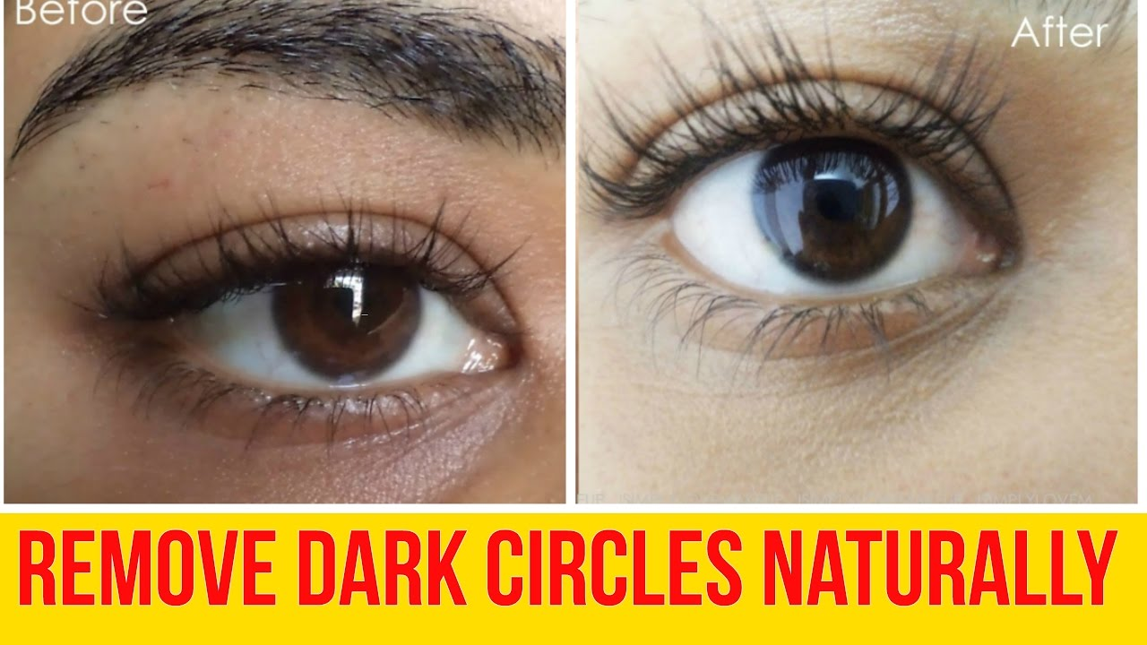 6 Home Remedies To Get rid of Dark circles and Under Eye ...