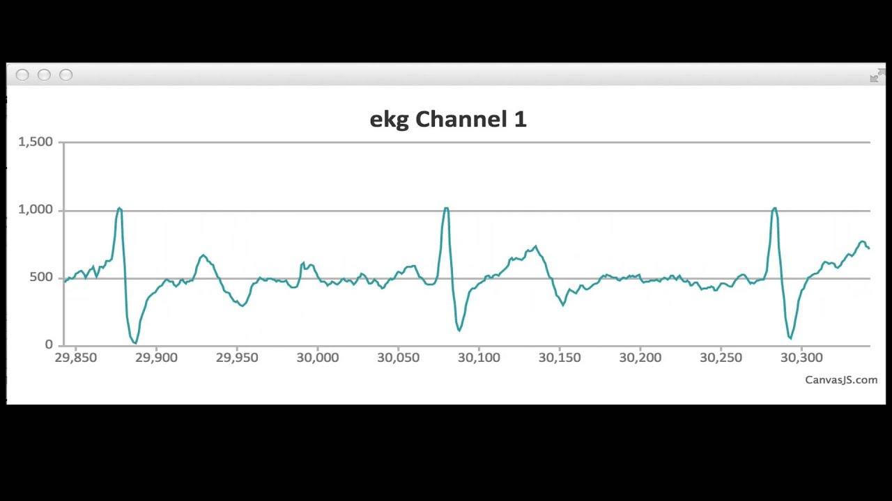 Diy arduino javascript ekg electrocardiogram youtube