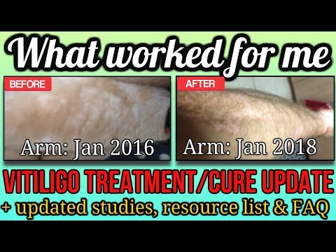 How to Cure Vitiligo: Natural Vitiligo Treatment THAT WORKS For Me! See My Progress...