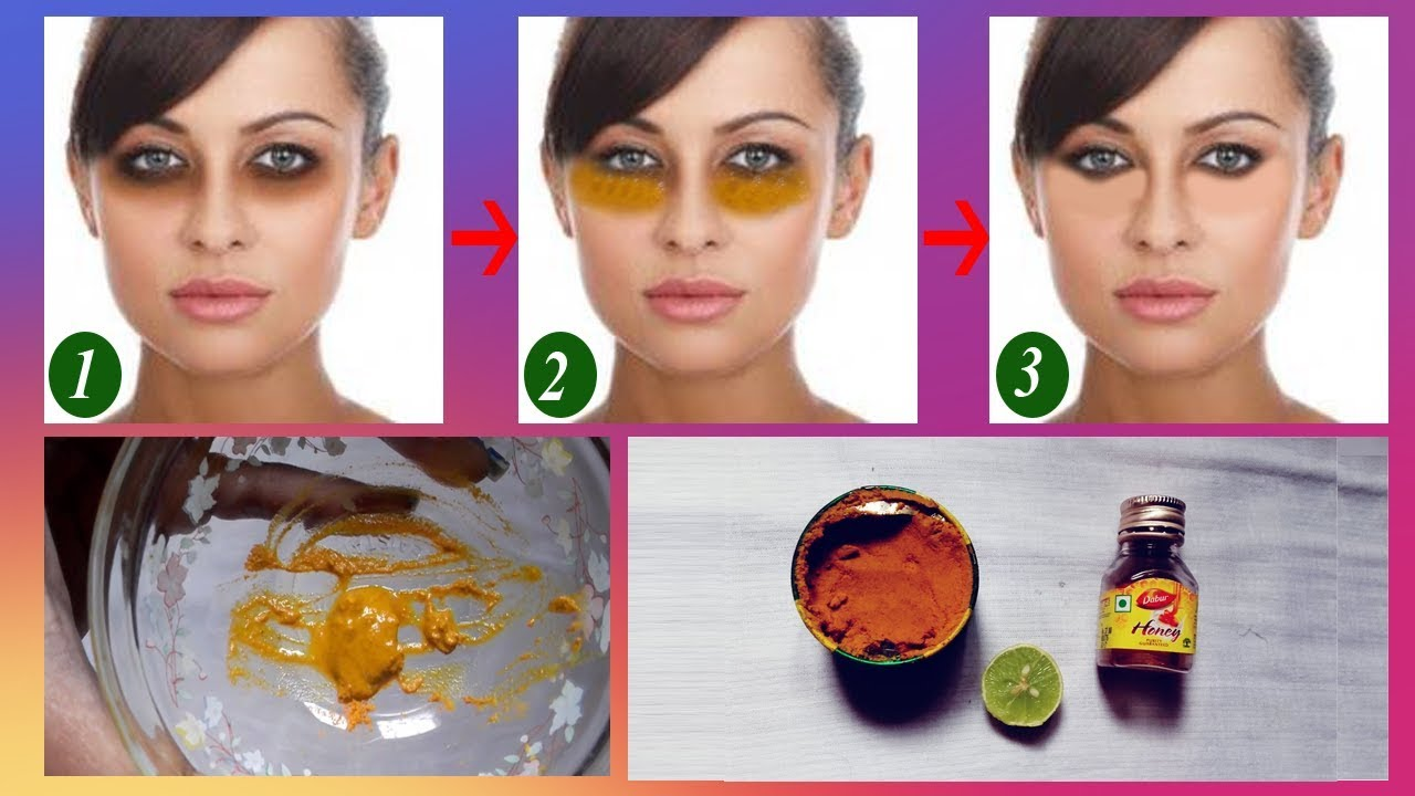 Get Rid of Dark Circles Overnight | Lemon & Turmeric - YouTube