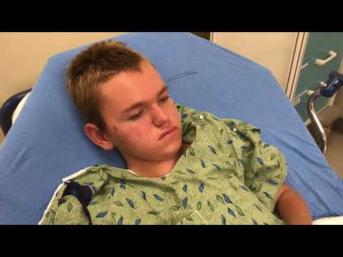 Spinraza, Dose 1 on August 29, 2017