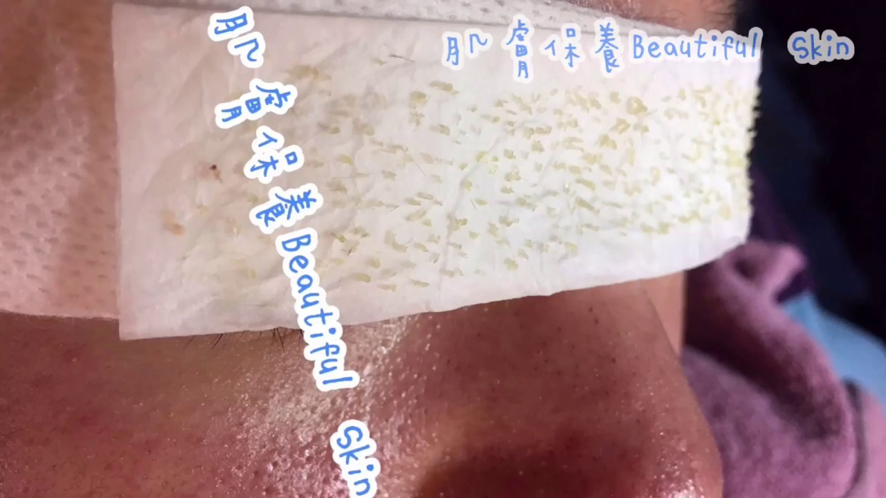 療癒清粉刺,專門處理痘痘、粉刺、毛孔粗大、痘疤、閉鎖粉刺、斑點、敏弱油性肌膚;全台都有據點服務唷~