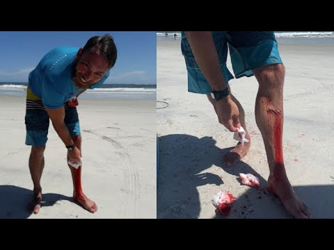 Shark bites surfer in Volusia County