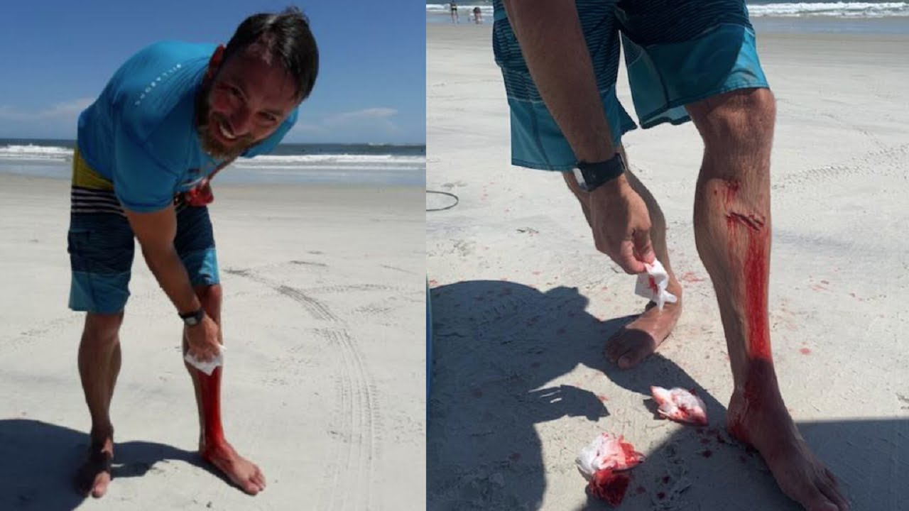 Surfer Catches Air At Florida Beach, Lands On Chomping 6