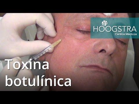Toxina botulínica (16081)