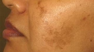 5 Home Remedy for Pigmentation, Hyperpigmentation, Brown Spots, Discoloration |NaghmaSyed