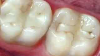 Dentist - Restorations Failing Resin Fillings