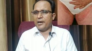 Skin फंगल इन्फेक्शन का इलाज treating fungal infection (in Hindi) Dr. Tyagi....