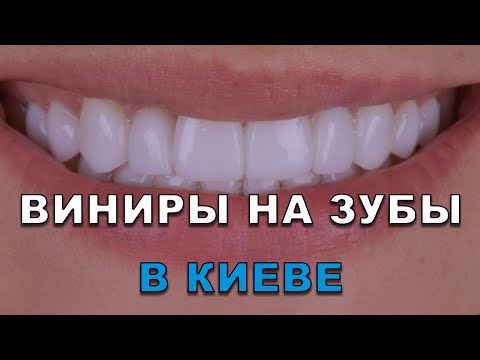 Виниры на зубы Киев (Украина) видео – стоматология Люми-Дент