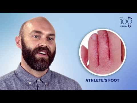 Understand and Manage: Fungal Nail