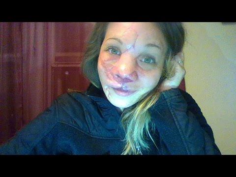 9/14/16 Jennifer Hiles: AVM update- Just got home.