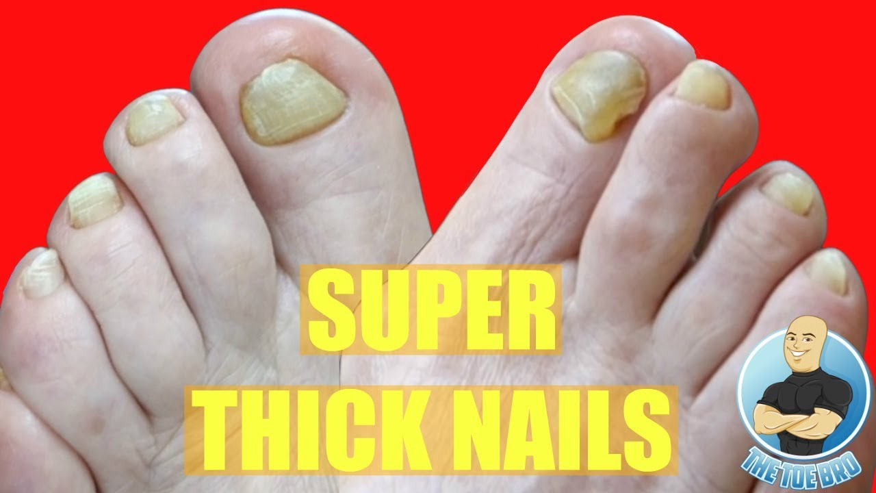 Before & After- Cutting Extreme Thick Fungal Toenails on a Lovely ...
