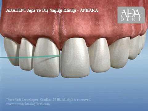 İmplant Üstü Diş Eti Temizliği