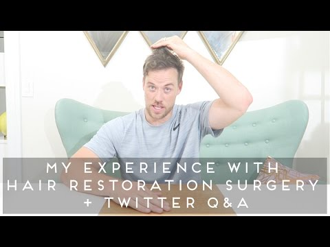 My Experience with Hair Restoration Surgery + Twitter Q&A