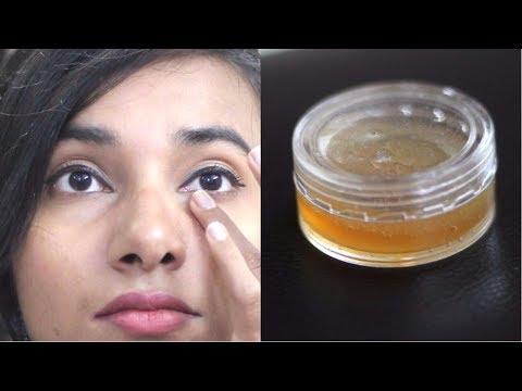 dark-circles-under-eyes- -आँखों-के-काले-घेरे-के-उपाय- -wrinkle-removal,-anti-ageing-eye-cream