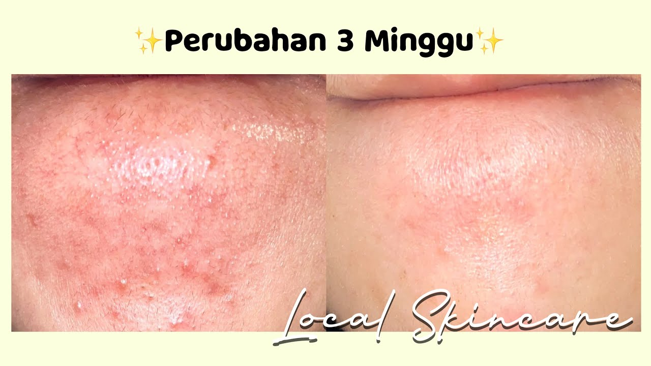 Review Skincare Routine (acne prone & oily combination)