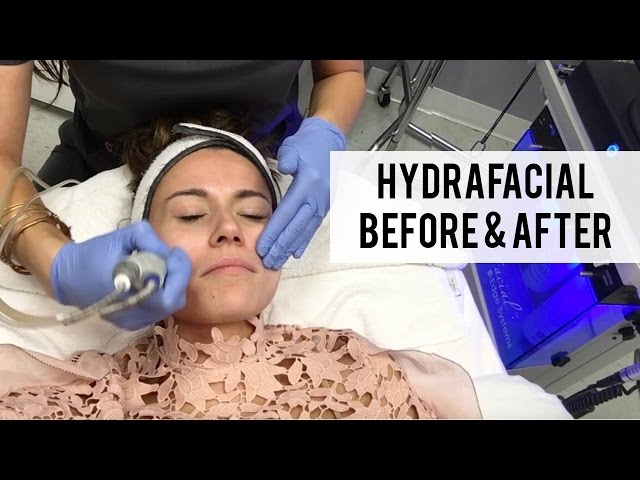 VLOG: Hydrafacial Before and After