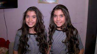 Gêmeas indênticas garantem que sentem as mesmas dores mesmo quando estão separadas thumbnail