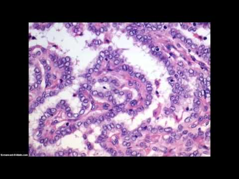 Papillary cancer of the thyroid - histological features