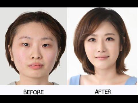 Những hình ảnh trước và sau khi phẫu thuật thẩm mỹ