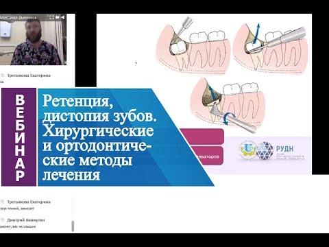 Вебинар «Ретенция, дистопия зубов. Хирургические и ортодонтические методы лечения».