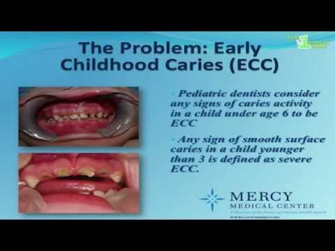 Lifetime of Smiles: the Age 1 Dental Visit