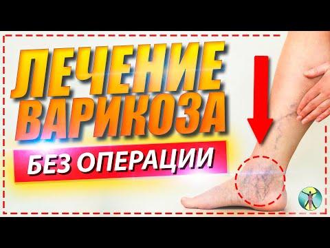 Стоит ли делать операцию против варикоза? Лечение варикоза на ногах.