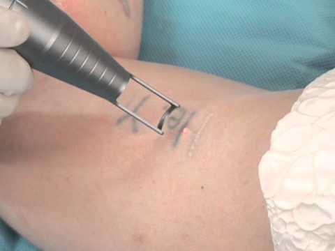 วิธีการลบรอยสัก (Tattoo Removal)