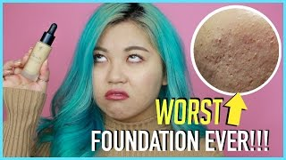 WORST Foundation Ever For ACNE Skin!!! BE AWARE!