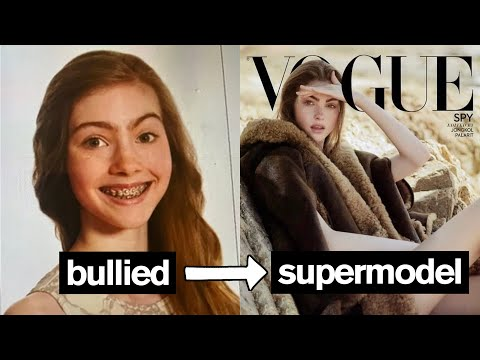 BULLIED TEENAGER BECOMES SUPERMODEL *Emotional*