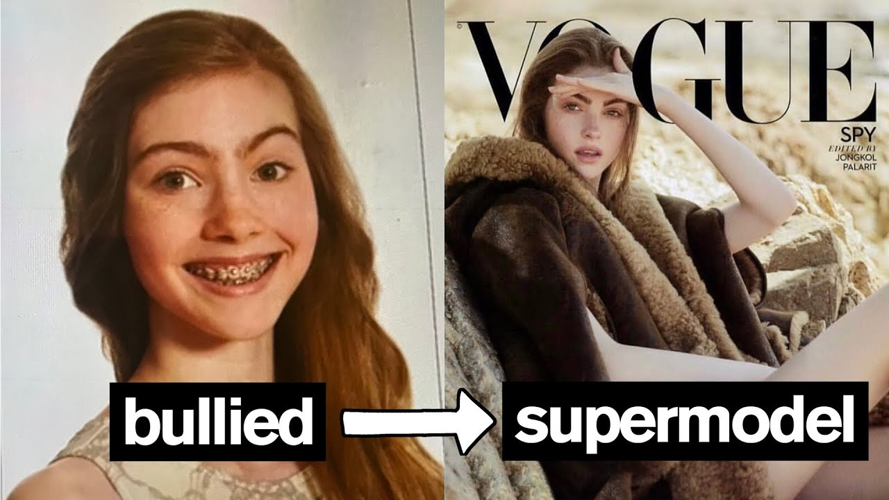 Download BULLIED TEENAGER BECOMES SUPERMODEL *Emotional*