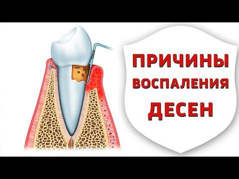 Пародонтит, гингивит, пародонтоз - причины, профилактика и лечение заболеваний десен | Дентал ТВ