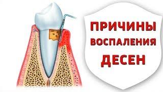 Пародонтит, гингивит, пародонтоз - причины, профилактика и лечение заболеваний десен  Дентал ТВ