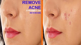 How to remove Acne in Photoshop cc l YouTube Tutorials Tuts